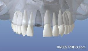 Dental Implant graphic