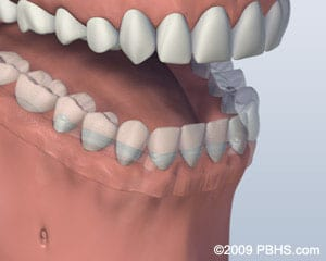 Denture Attached